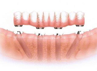オールオンフォー下顎4本 仮歯