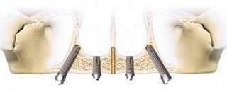 オールオンフォー上顎術式4