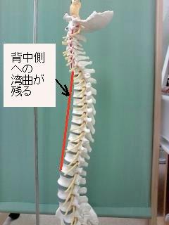胸椎の湾曲(模型)