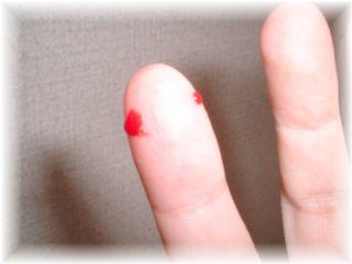 小指噛まれました…(T0T)」