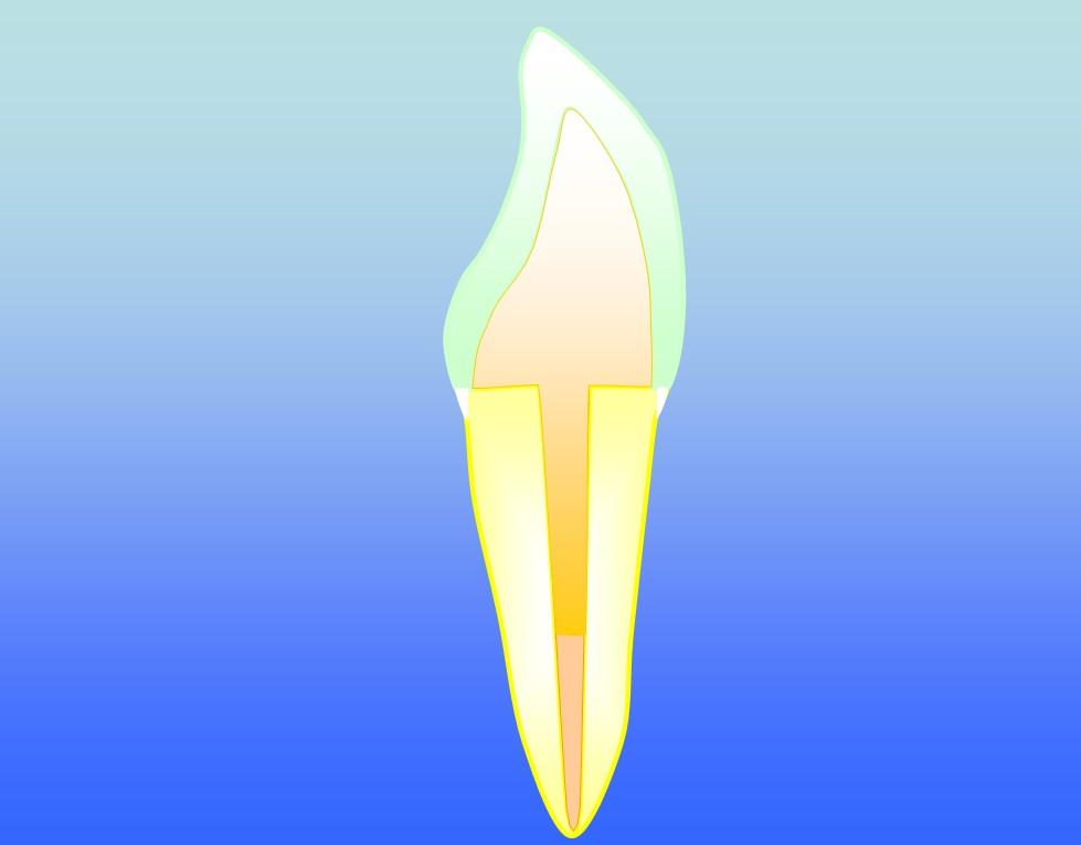 incisor hh