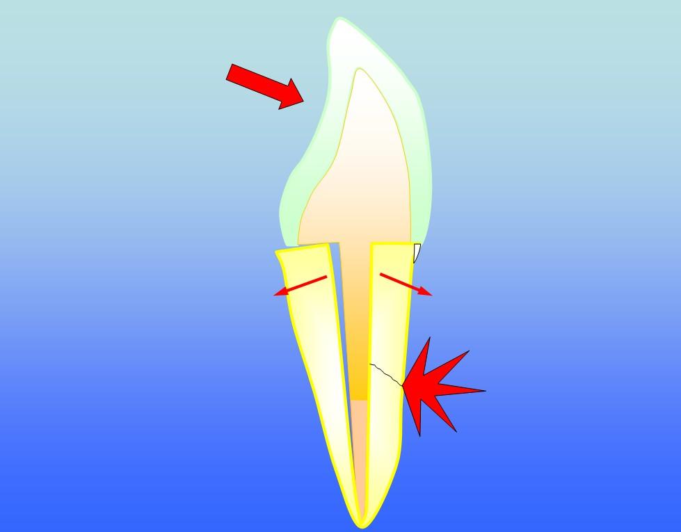 incisor ii