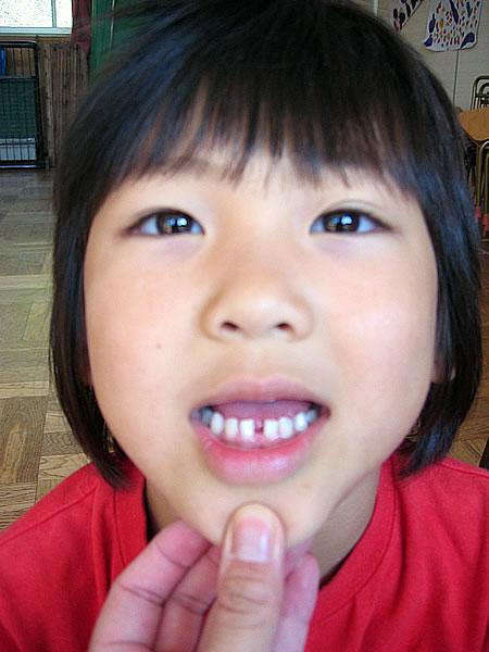りんりん歯が抜ける。