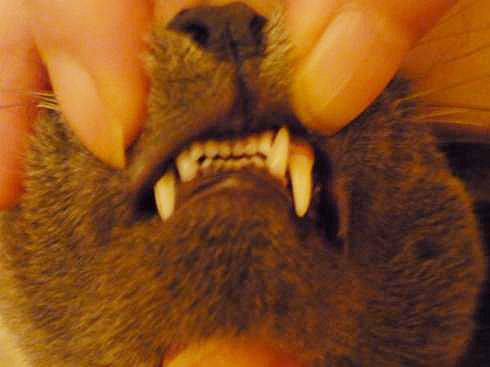 ゆきじの歯