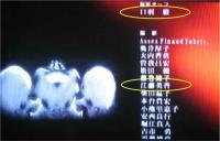 1014屍姫2