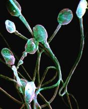 sperm_16024523精子