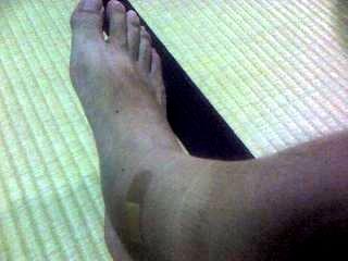 足の腫れ(その1)