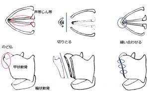 声の女性化手術
