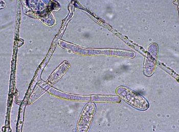 うどん粉病菌